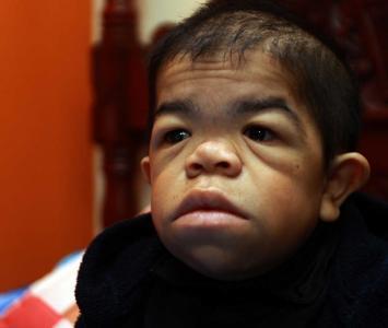 Edward Niño, el colombiano que vuelve a ser el hombre más bajo del mundo